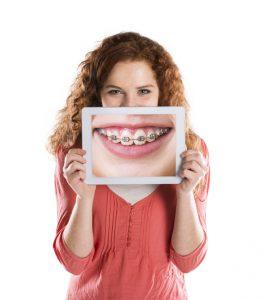Ortodoncia en Fuenlabrada