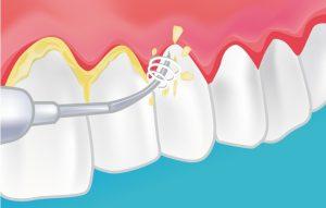 Herramienta de ultrasonidos para limpieza dental