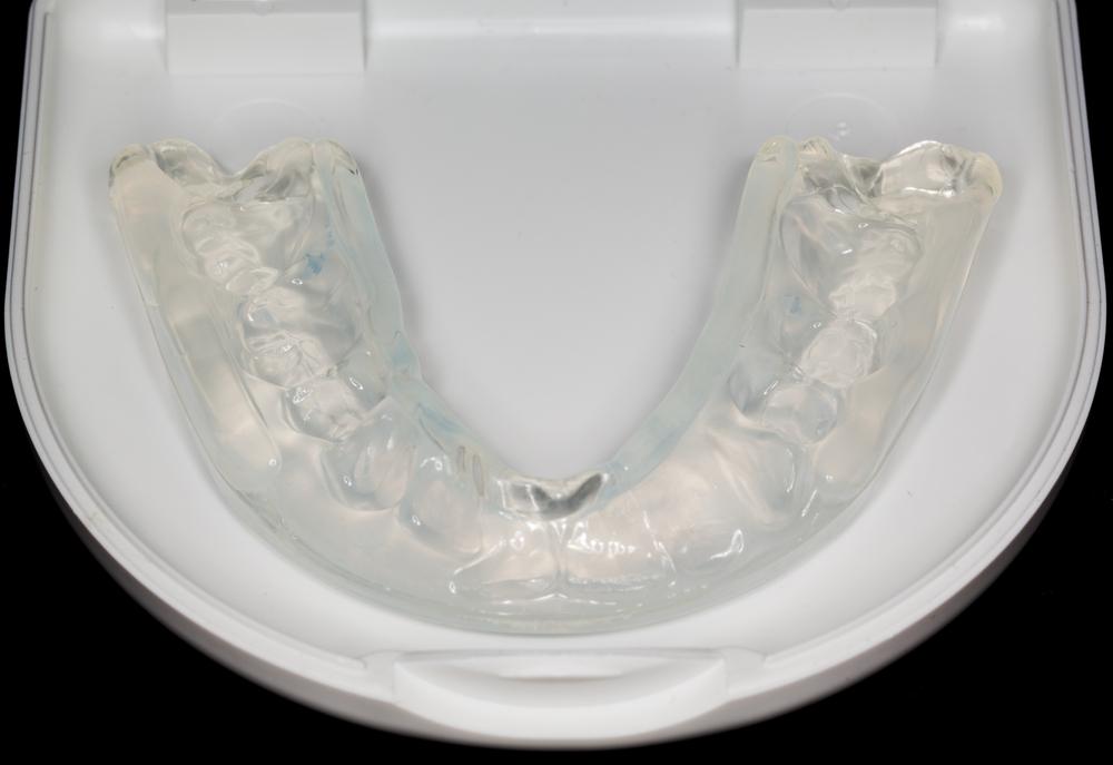 Férula dental Fuenlabrada